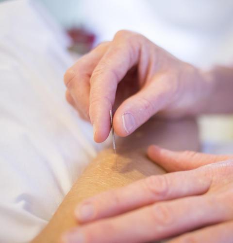 Akupunktur på arm
